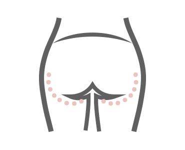 Glúteoplastia